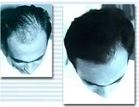 Transplantation de cheveux